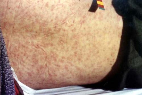 麻疹和幼儿急诊